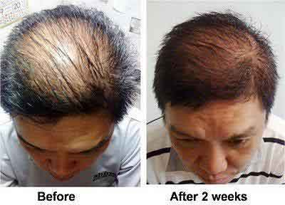 Nutriol hair fitness treatment 1