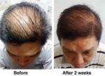 nutriol-hair-fitness-treatment