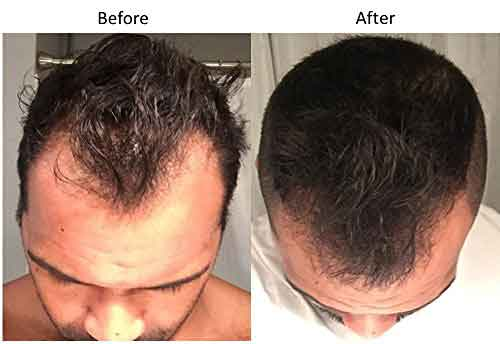 Nutriol hair fitness treatment 2