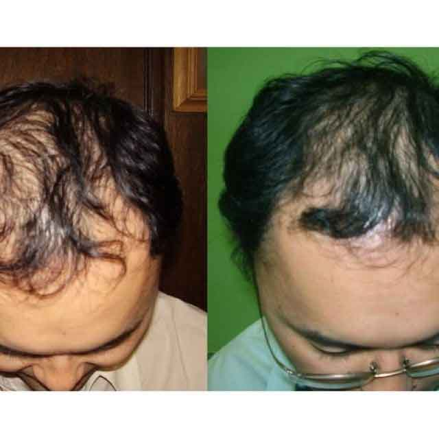 Nutriol hair fitness treatment 4