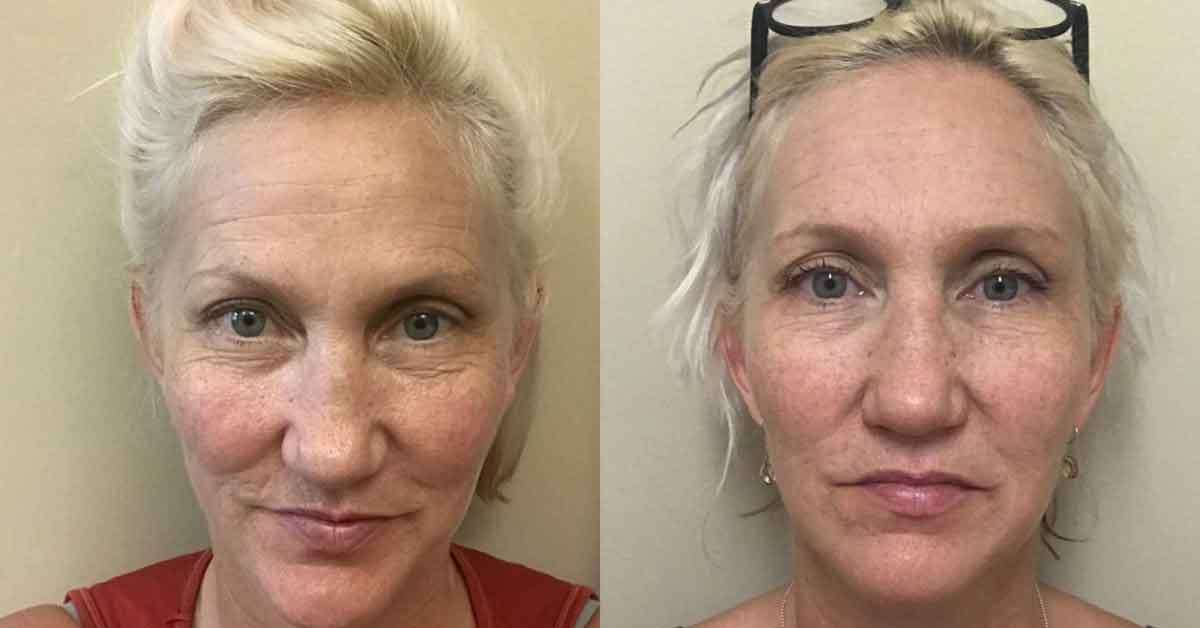 Facial yoga exercises 1