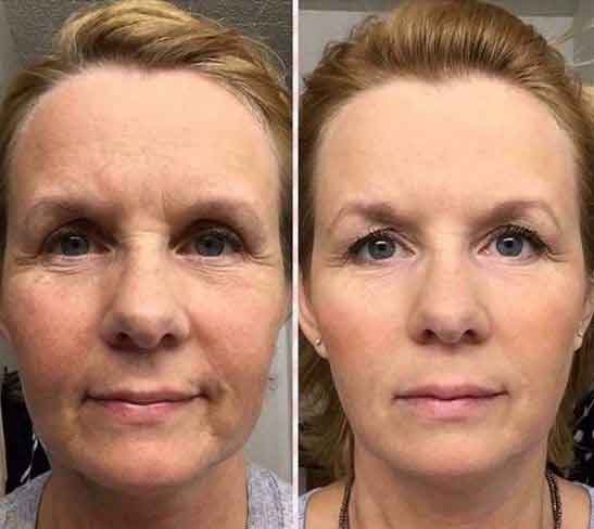 Facial yoga exercises 13