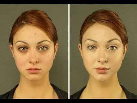 Facial yoga exercises 15