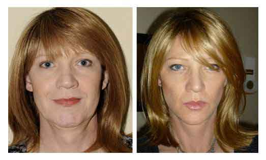 Facial yoga exercises 3