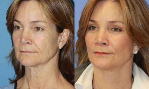 Facial yoga exercises 5