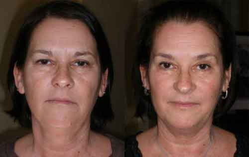 Facial yoga exercises 7
